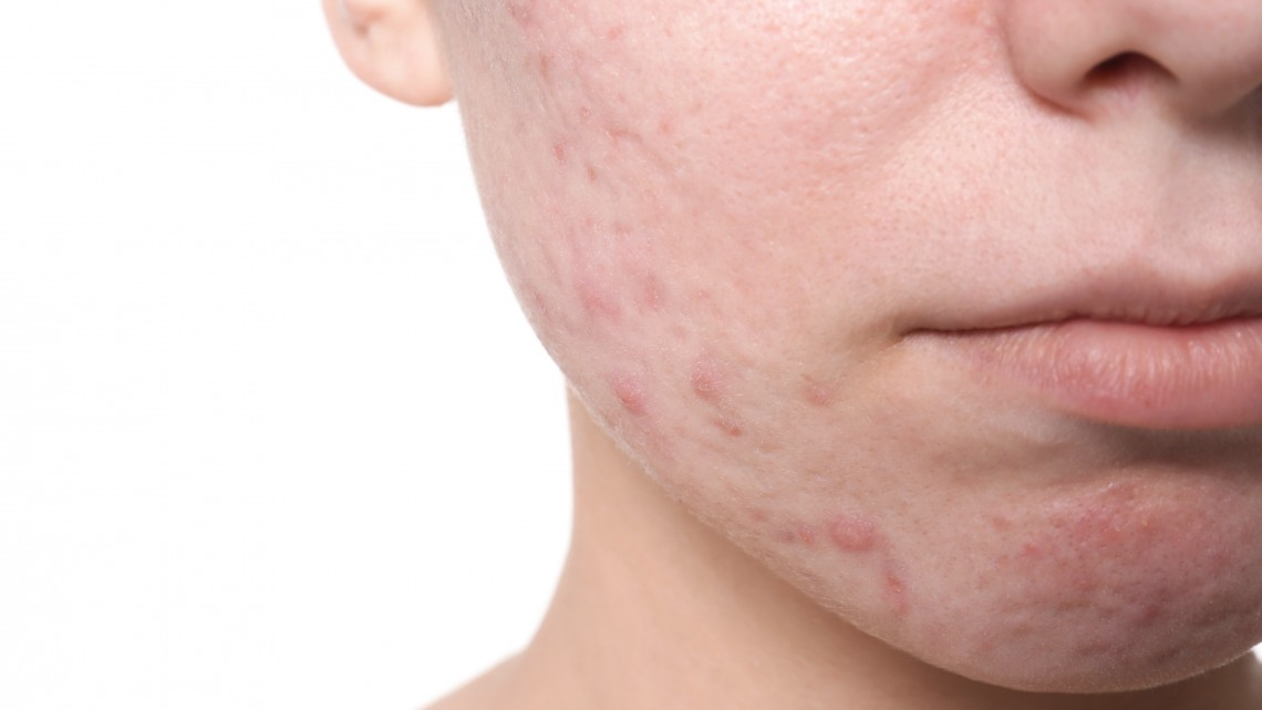 Támad a tinédzserek arcgyilkos betegsége: sokan egy életen át viselik a nyomát