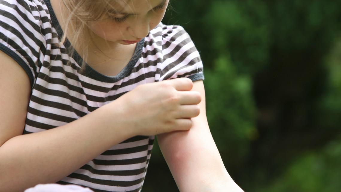 A lakosság segítségét kérik a szúnyogfajok feltérképezéséhez: mutatjuk, hogy segíthetsz