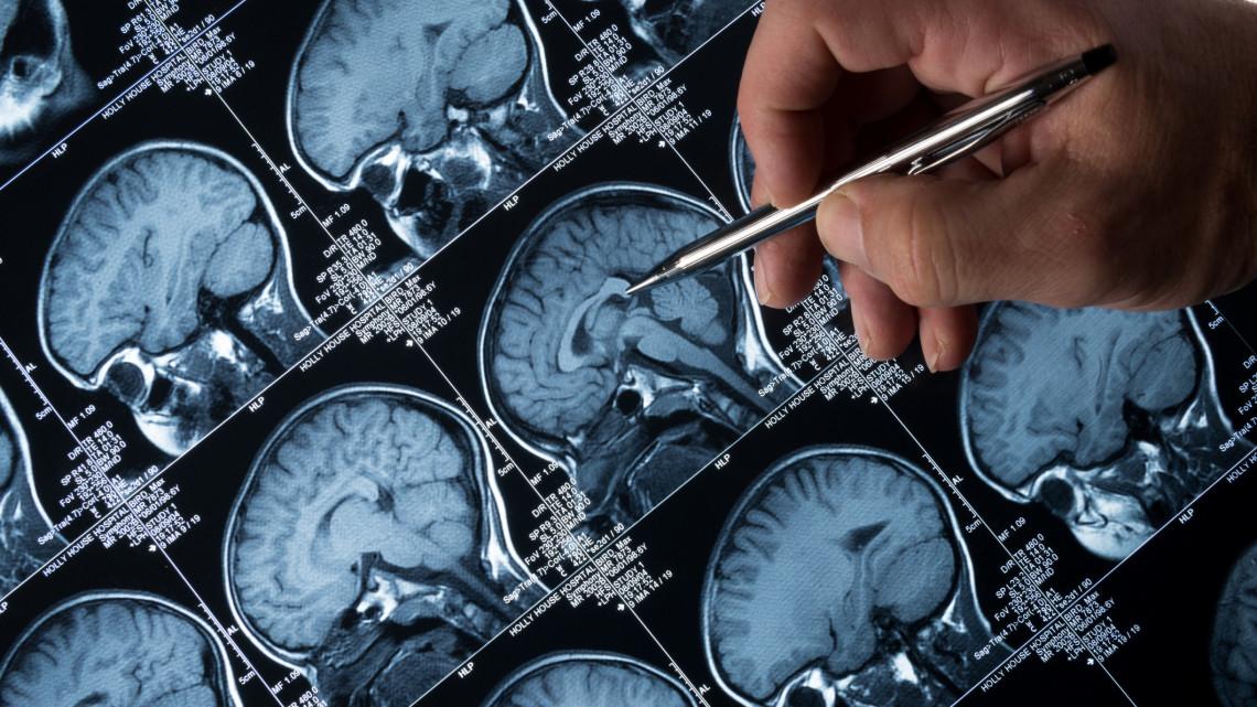 Áttörés küszöbén szegedi kutatók: magyar találmány vethet véget az epilepsziarohamoknak