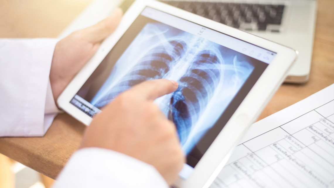 Világszenzáció, ahogy Szegeden műtenek: esélyt kaphatnak a tüdőrákos betegetek is
